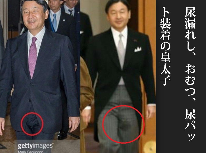 「皇太子 尿漏れ」の画像検索結果